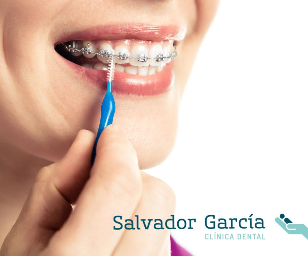 Cómo cuidar tu salud bucodental con ortodoncia