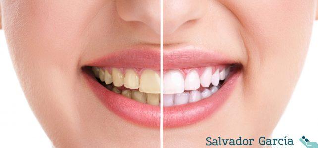 Blanqueamiento dental, mejora la estética de tu boca
