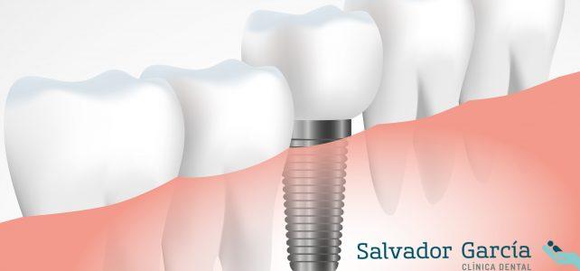 Los implantes dentales, su cuidado y mantenimiento