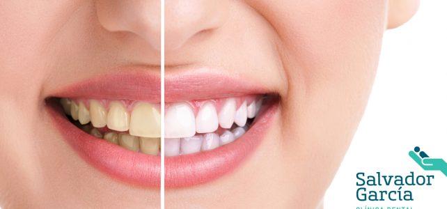 Dentista en Málaga: ¿Qué es la blancorexia?