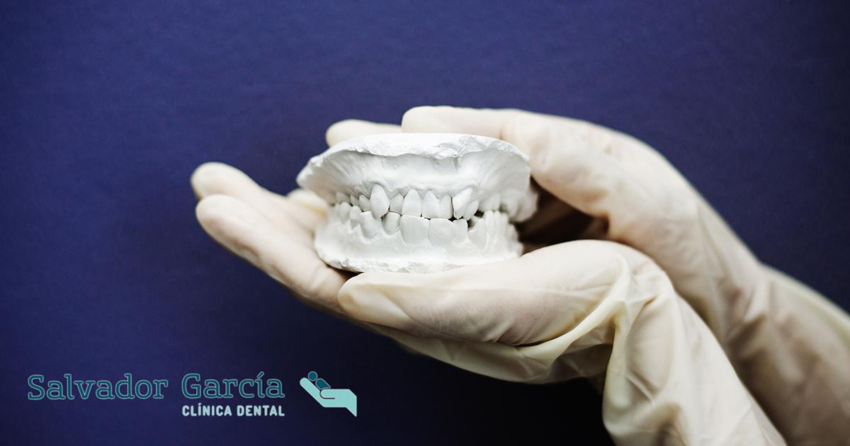Mala Oclusión Dental