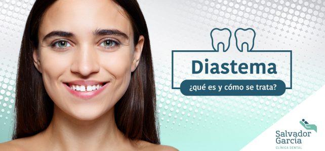 Diastema dental, ¡no más espacio entre tus dientes!