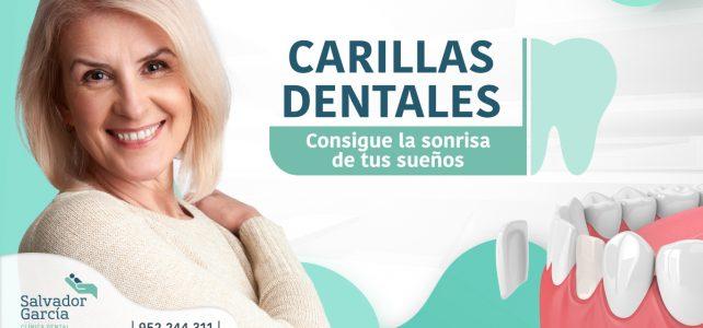 Carillas dentales: la mejor estética para una sonrisa más bonita
