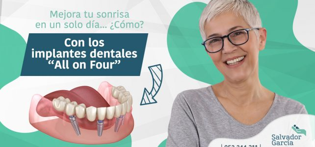Implantes all on four: ¡cambia tu sonrisa en un solo día!