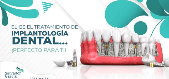 Implantes dentales: ¿Cuál es el más apropiado para ti?