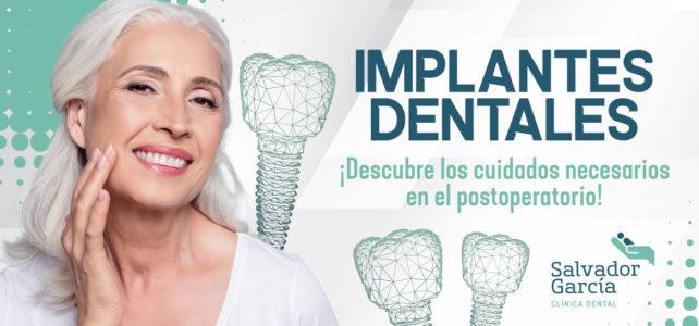 Postoperatorio tras cirugía de implantes dentales: ¿qué cuidados adoptar?