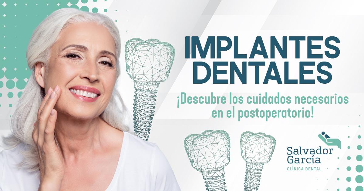 Postoperatorio de implantes dentales: ¿qué cuidados adoptar?