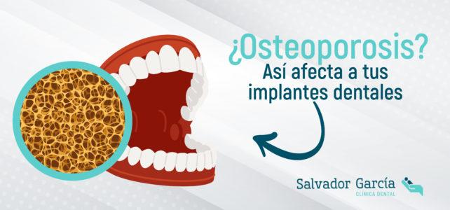 ¿Osteoporosis? Claves para el éxito de tus implantes dentales