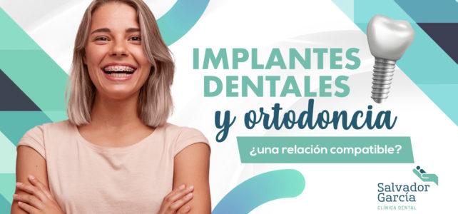 Implantes dentales, cuándo colocarlos en un tratamiento de ortodoncia
