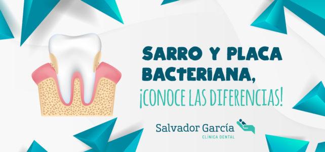 El sarro y la placa bacteriana, ¿conoces la diferencia?