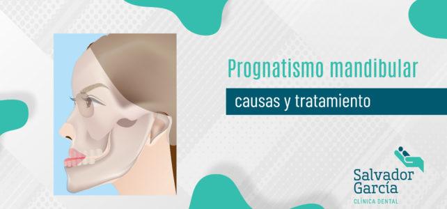 Prognatismo mandibular, causas y tratamiento
