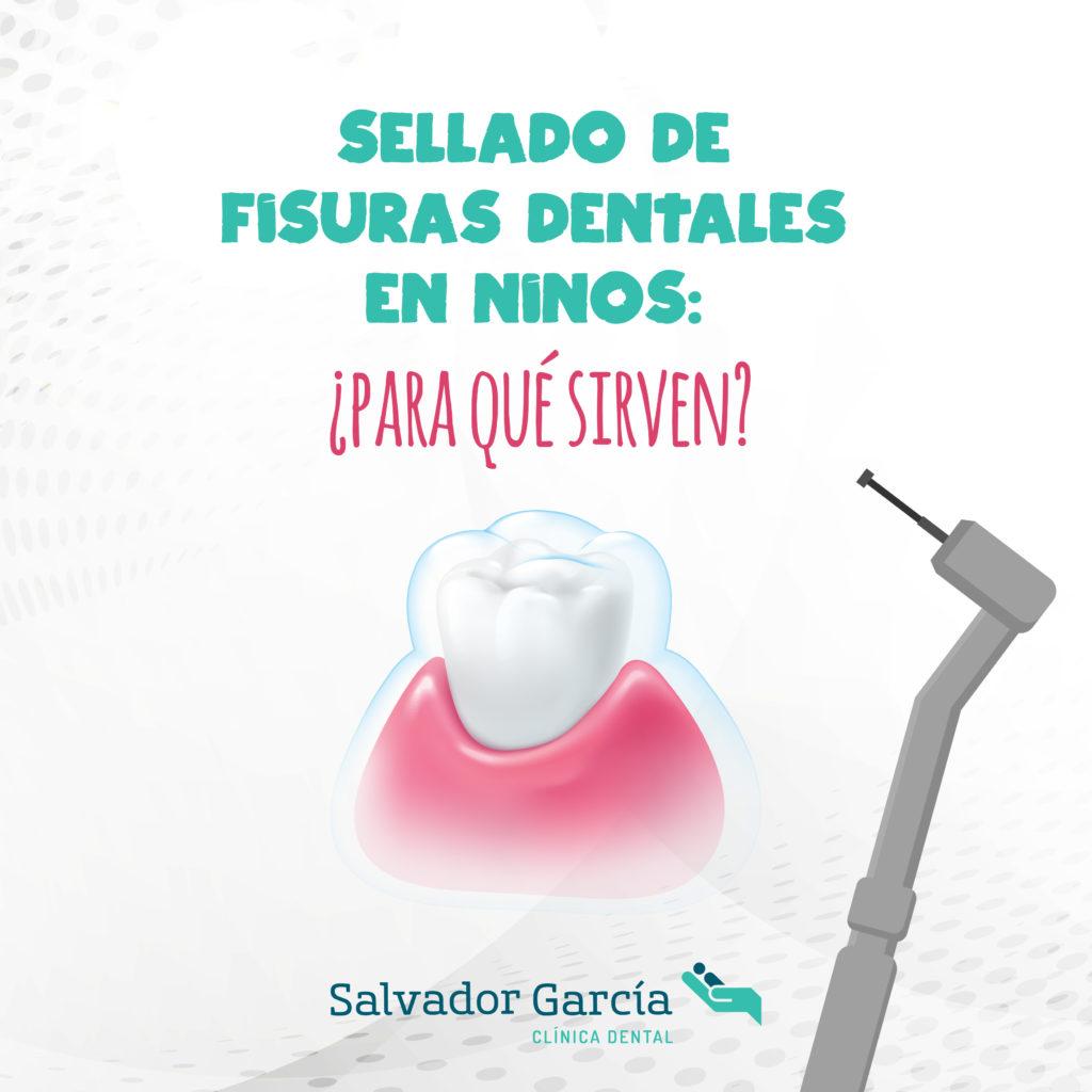Sellado de fisuras dentales
