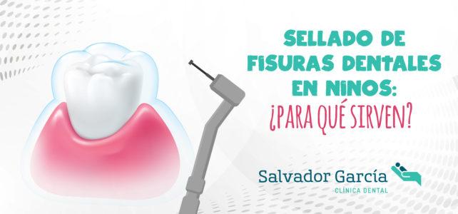 Sellado de fisuras dentales: la importancia de la odontopediatría