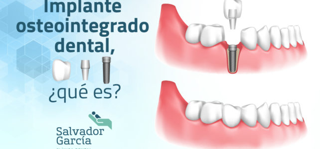 Implante osteointegrado dental, ¿qué es?