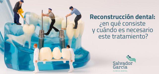 Reconstrucción dental: ¿en qué consiste y cuándo es necesario este tratamiento?