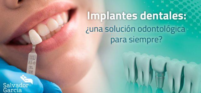 Implantes dentales: ¿una solución odontológica para siempre?
