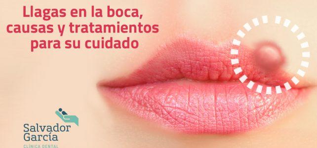 Llagas en la boca, causas y tratamientos para su cuidado