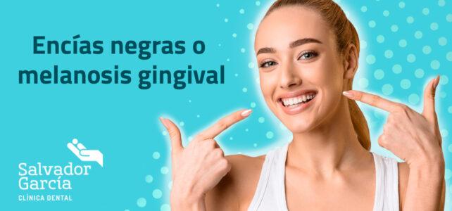 Encías negras o melanosis gingival