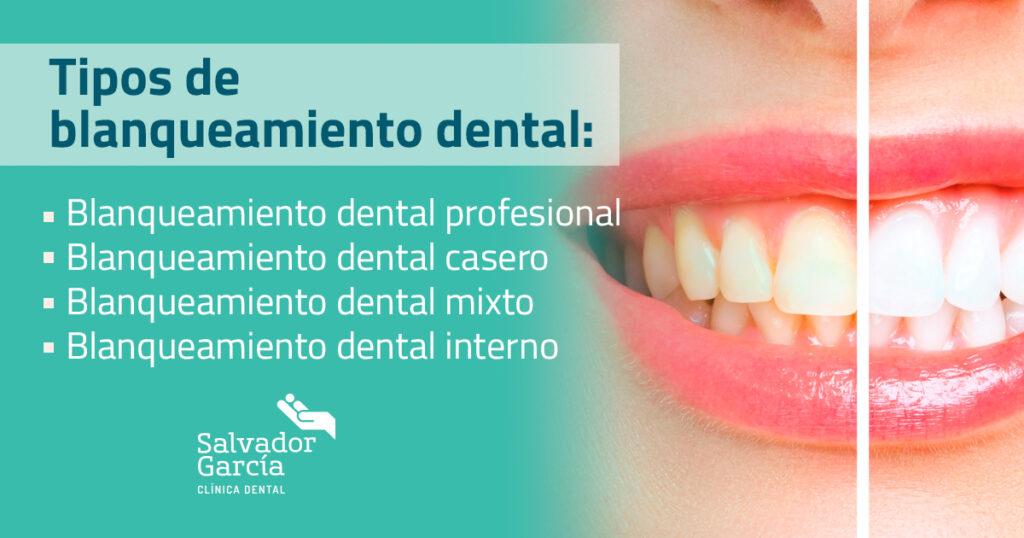 Blanqueamiento dental. Tipos de tratamiento