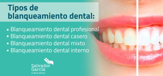 Blanqueamiento dental. Tipos de tratamientos