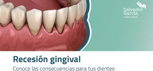 Recesión gingival. Conoce las consecuencias para tus dientes