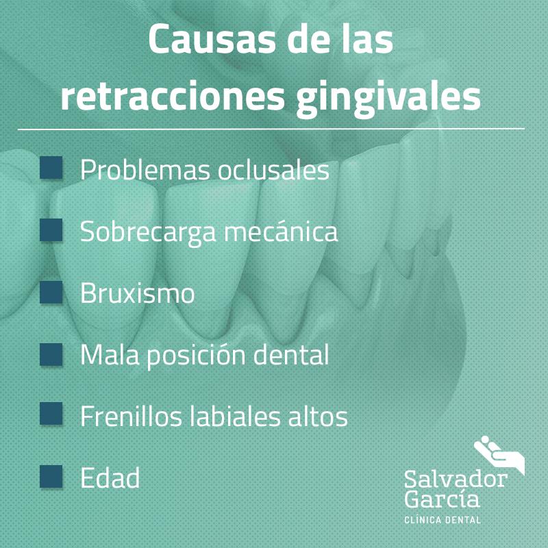 Causas de las retracciones gingivales