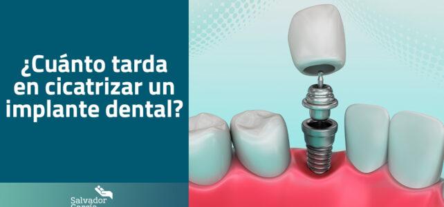 ¿Cuánto tarda en cicatrizar un implante dental?