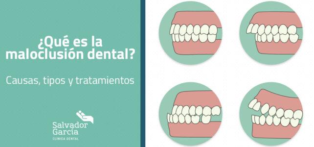 ¿Qué es la maloclusión dental?